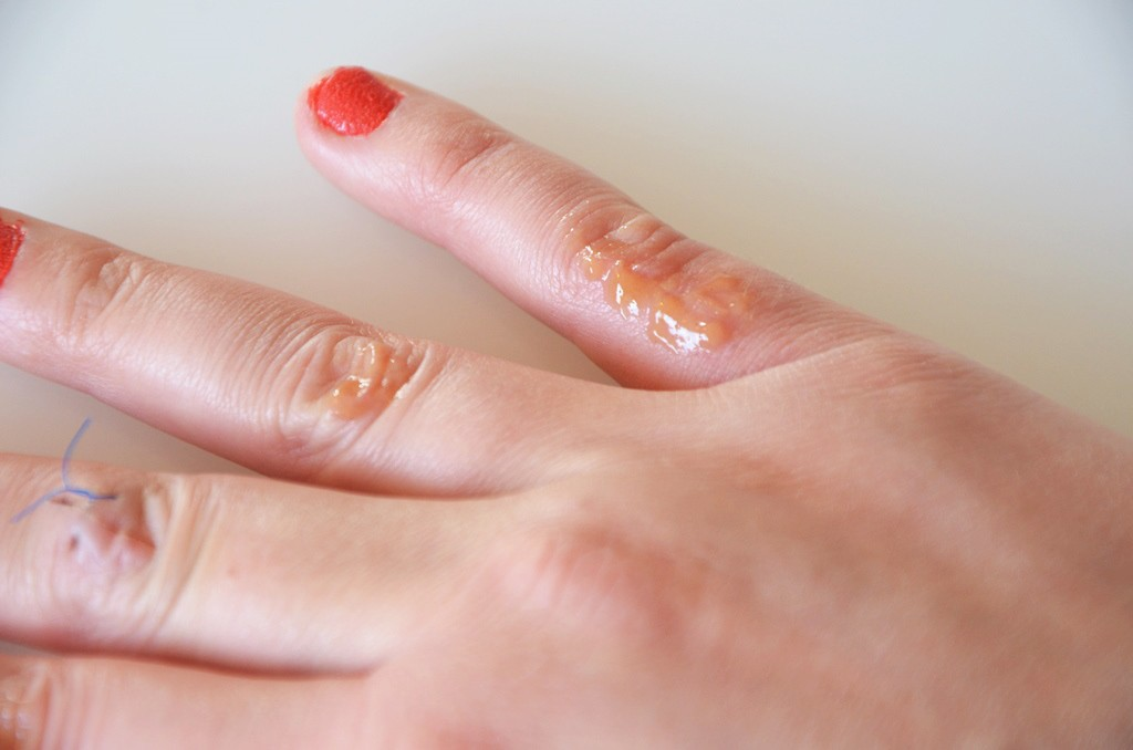 Instanatural Scar gel